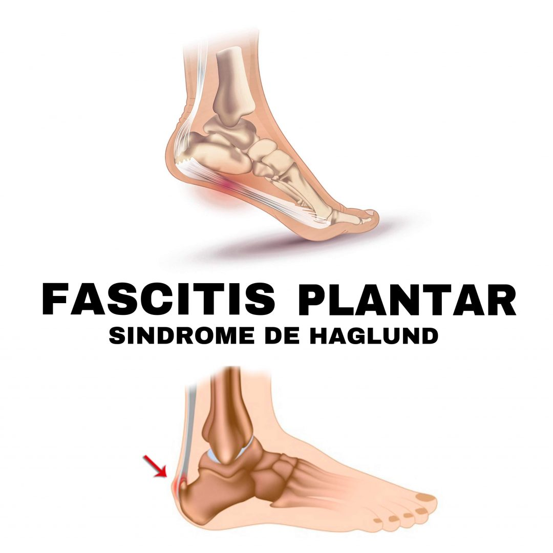 Fascitis plantar y el Síndrome de Haglund