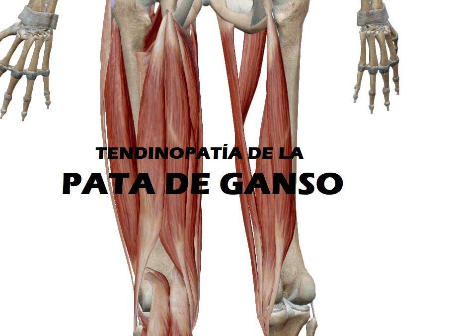 Tendinopatía de la pata de GANSO